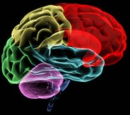 XRay image of the brain